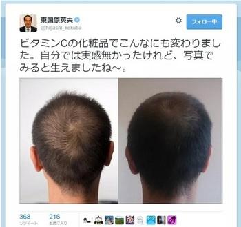 東国原ツイッター育毛剤.jpg